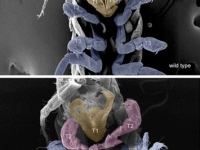 Ventral view SEM comparing a wild-type Parhyale hatchling (top) with a hatchling that had been injected with siRNAs targeting the Parhyale ortholog of the Hox gene . . .